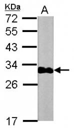 GTX112770 - Cardiac Troponin I