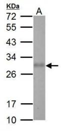 GTX112777 - Adiponectin