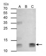 GTX112815 - Beta-2-microglobulin