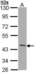 GTX112817 - CD1b