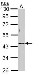 GTX112826 - Cytokeratin 19