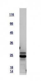 GTX112827-pro - GADD153 / CHOP