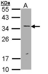 GTX112848 - ERCC1