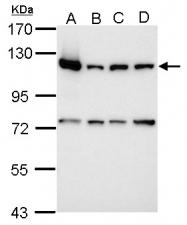 GTX112864 - PARP1