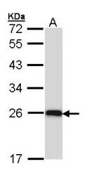 GTX112883 - C1q A subunit