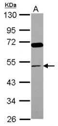 GTX112890 - CD14