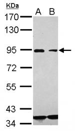 GTX112891 - CD36