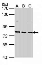 GTX112923 - ERCC3