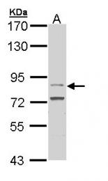 GTX112934 - CD334 / FGFR4