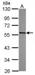 GTX112952 - Alanine aminotransferase 1 (ALT1)