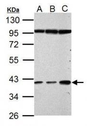 GTX112962 - Haptoglobin