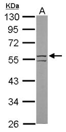 GTX112975 - Cytokeratin 8