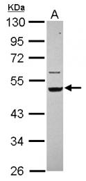 GTX112976 - Cytokeratin 14