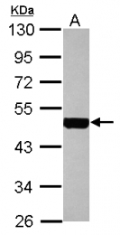 GTX112977 - Cytokeratin 18