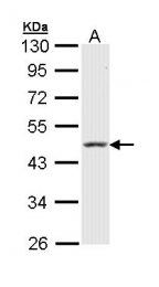 GTX112978 - Cytokeratin 18
