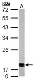 GTX112988 - NDP kinase A