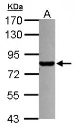 GTX112996 - PML / RNF71