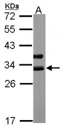 GTX113028 - Cardiac Troponin I