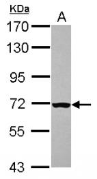GTX113056 - CHK2