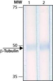 GTX11307 - TUBB / TUBB5