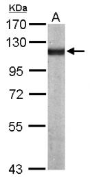 GTX113115 - Alpha-actinin-4 / ACTN4