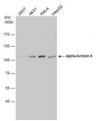 GTX113116 - Alpha-actinin-4 / ACTN4