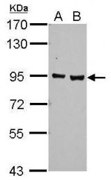 GTX113124 - Ah receptor (AhR)