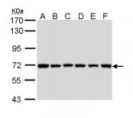 GTX113128 - IAP1 / BIRC3