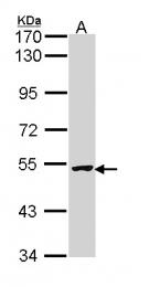 GTX113130 - IAP3 / BIRC4