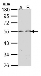 GTX113165 - Chromogranin A