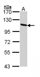 GTX113168 - Ceruloplasmin