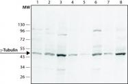 GTX11317 - TUBG1 / Tubulin gamma 1