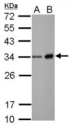GTX113175 - Neutrophil elastase