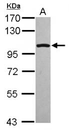 GTX113207 - Glucocorticoid receptor