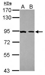 GTX113208 - Glucocorticoid receptor