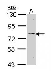 GTX113215 - Tyrosine-protein kinase ITK/TSK