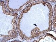 GTX113219 - Cytokeratin 5