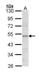 GTX113223 - Lipoprotein lipase