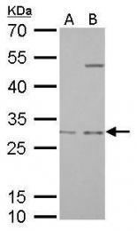 GTX113243 - Prohibitin / PHB