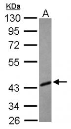 GTX113275 - TFDP1