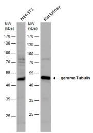 GTX113286 - TUBG1 / Tubulin gamma 1