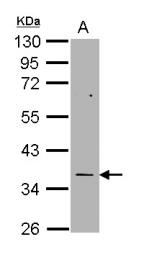 GTX113289 - Thymidylate synthase (TS)