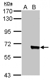 GTX113311 - AKT3 / PKB gamma