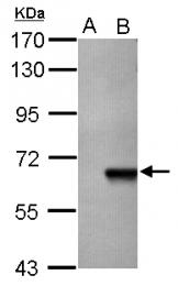 GTX113312 - AKT3 / PKB gamma