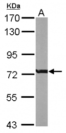 GTX113320 - RACGAP1