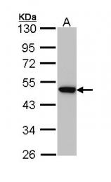 GTX113332 - AP2 complex subunit mu-1 / AP2M1
