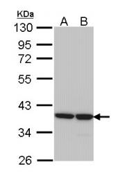 GTX113381 - AKR1B1 / ALDR1