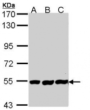GTX113382 - Alkaline phosphatase / PLAP / ALPP