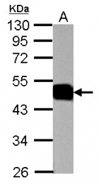 GTX113390 - ATP1B1