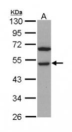 GTX113402 - RCC1 / CHC1